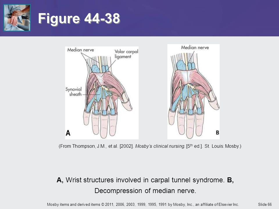 Figure 44-38 (From Thompson, J.M., et al. [2002]. Mosby's clinical nursing. [5th ed.]. St. Louis: Mosby.)